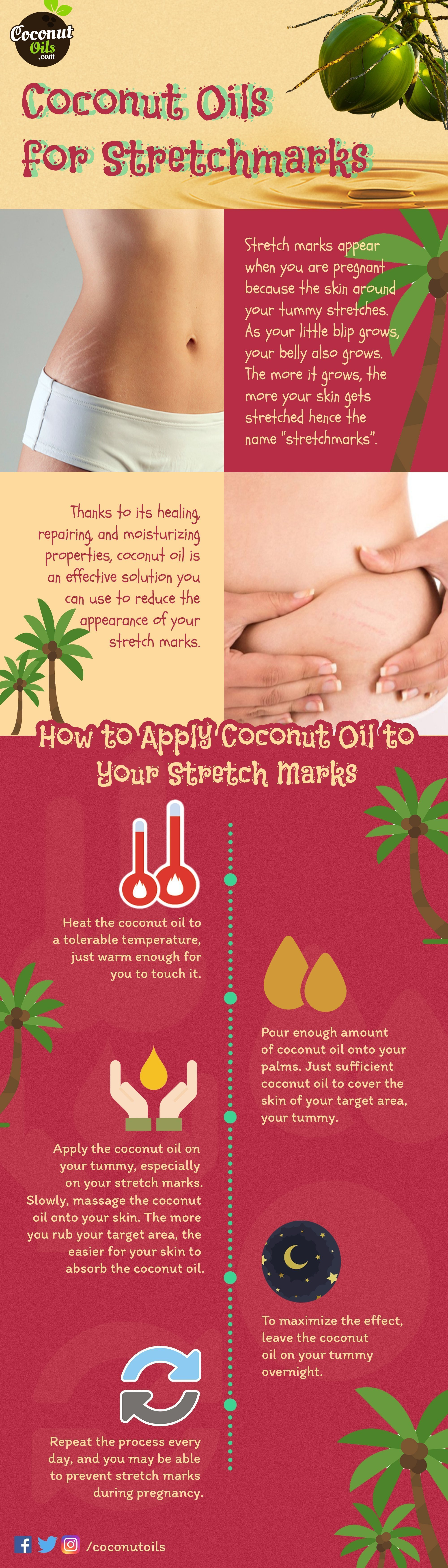 Coconut Oil for Stretchmarks